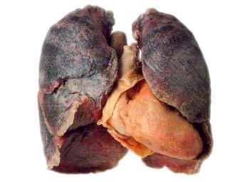 Лёгкие курящего и некурящего человека